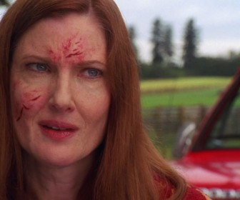 Martha Kent Injured Face Wallpaper